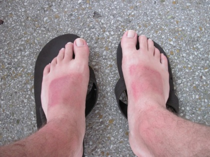 Thomas' erster Sonnenbrand