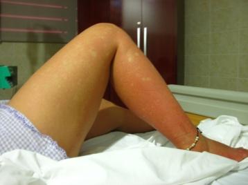 Hautausschlag